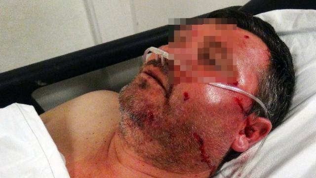 Aksaray'da Silahlı kavga 2 yaralı